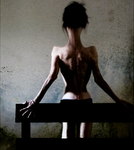 Anorexia by stabmetilicum