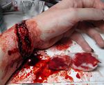 Laceration by PlaceboFX