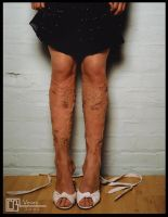 Varicose Veins Prosthetic by CB-FX