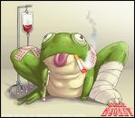 Intensive Care Frog by tysonhesse
