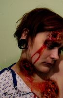 infected.2 by sugarlesskittie