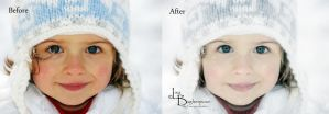 Childs Face Before and After by FairieGoodMother