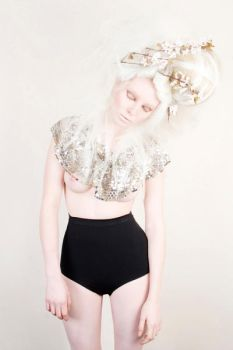Albinism III by Pritography
